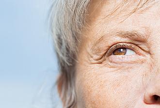 Maladie d'Alzheimer : retour sur des a priori